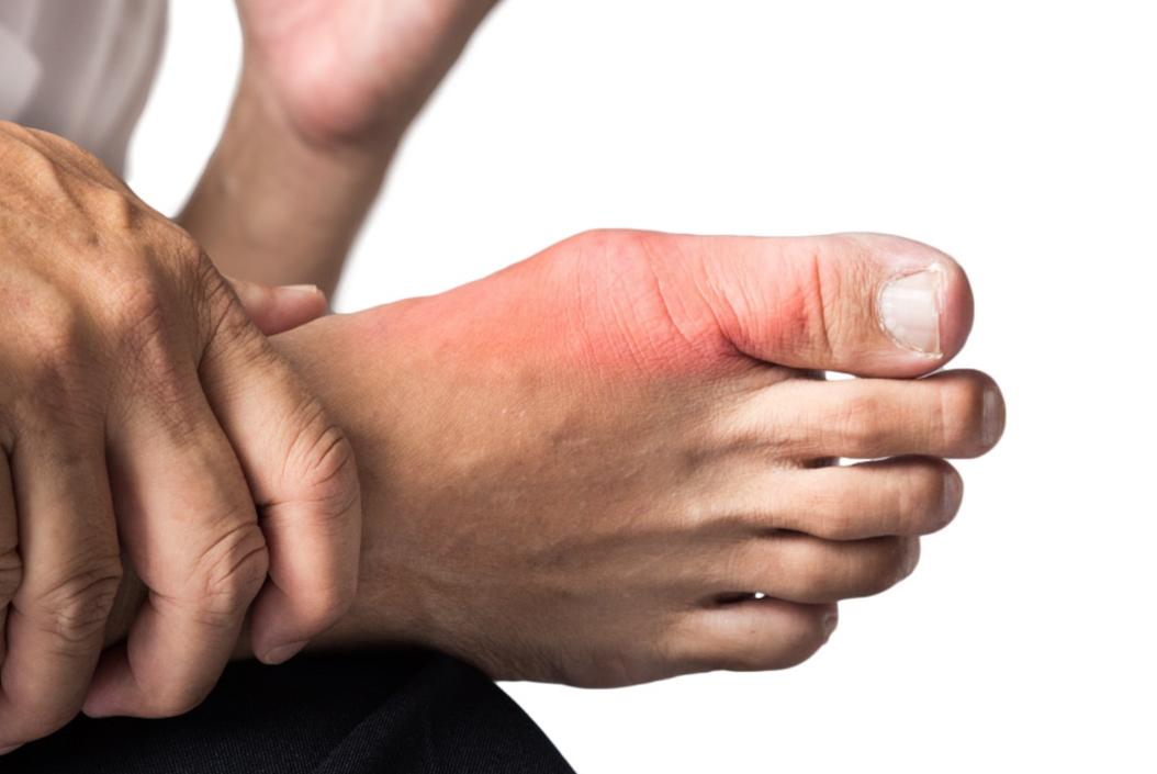 Osteoarthritis of the big toe