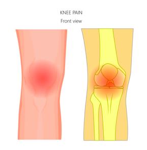illustration of knee pain from patellofemoral osteoarthritis